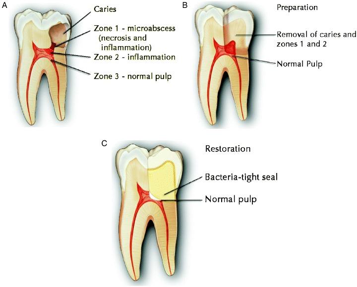 root canal alternative holistic biological iaomt dentist charlotte nc paul plascyk dds