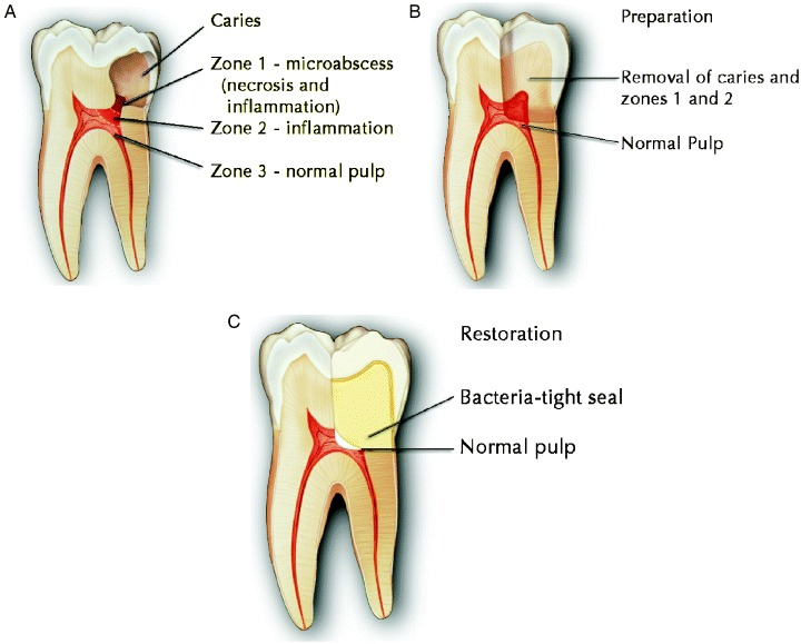 Root Canal Alternative Holistic Biologic Iaomt Dentist